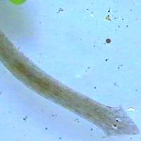 избавиться от червей паразитов