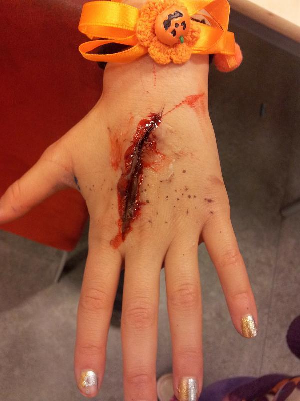 Как сделать ненастоящую рану фото 628
